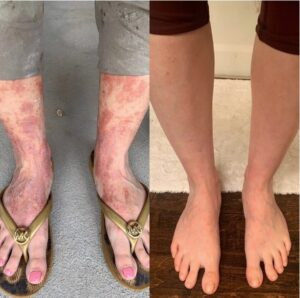 Eczema Threated with Photobiomodulation Therapy